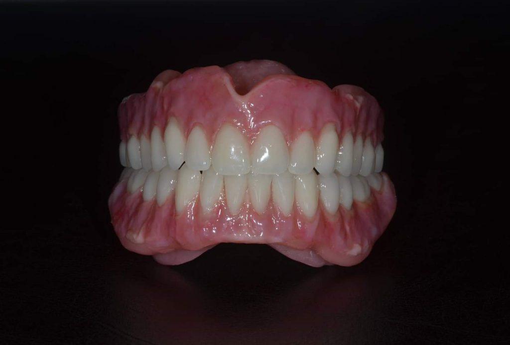 Denture on a black background